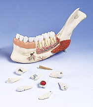 3B Scientific Half Lower Jaw 8 Diseased Teeth Mode VE290